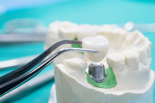 Dental crowns example in Wellesley and Weston, MA. Dental crowns Wellesley MA