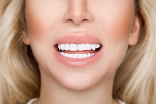 Woman with dental veneers in Wellesley and Weston MA. Dental veneers Wellesley MA