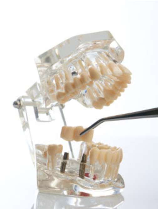 Example of dental bridges in Wellesley and Weston, MA. Dental bridges Wellesley Ma