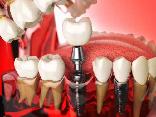 Dental Implant | Dental implants example in Wellesley and Weston, MA. Dental implants Wellesley MA