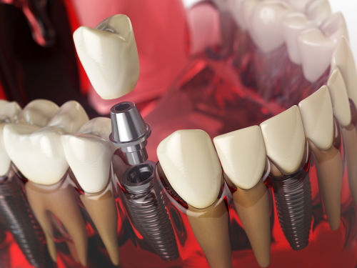 Surgical dental implant model in Wellesley and Weston, MA. surgical dental implant Wellesley MA