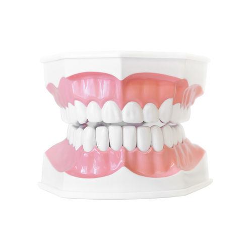 gum disease   Dentist in Weston MA