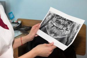 Dental exam in Weston MA