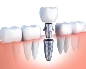dental implants Weston MA