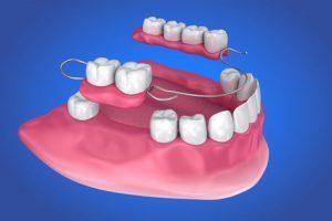 dentures Weston MA