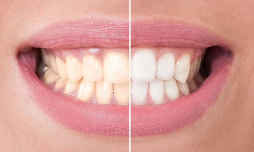 Wellesley Teeth Whitening