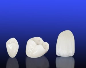 Wellesley dental crowns