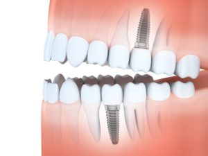 Wellesley dental implants | teeth replacement