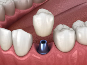 sudbury dental implants