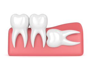 wisdom teeth wayland ma