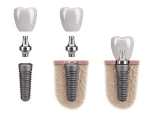 Wayland Dental Implants