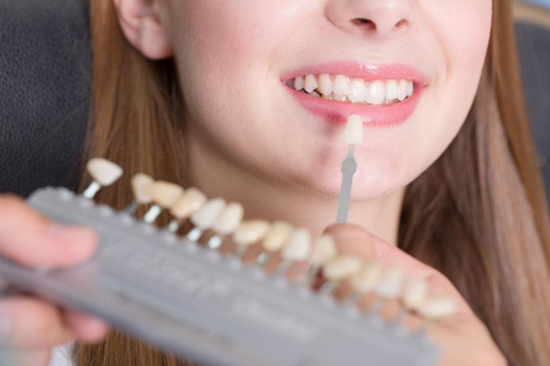 patient with dental veneers wayland