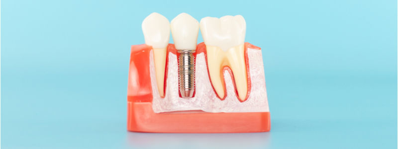 cosmetic dentists and dental implant model