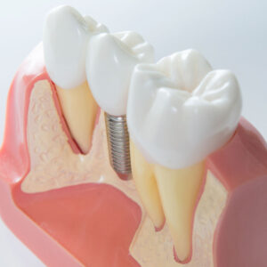 dental implants dentist | dental implant model