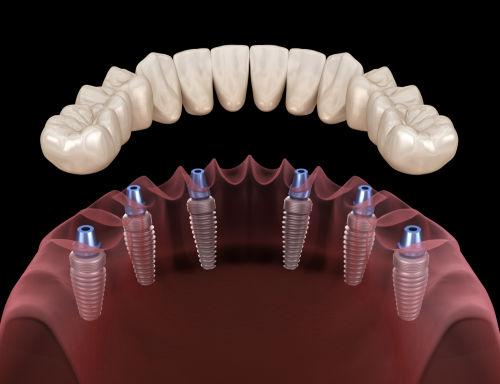 Best dentist in wellesley   dentures with dental implants