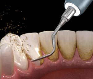 Best dentist in Weston | dental cleaning