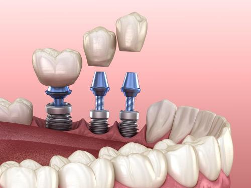 Best dentist in wellesley   dental implants