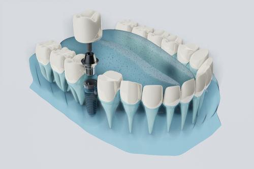 Best dentist in wayland: Dental implant