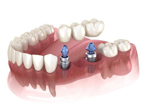 Best dentist in wayland: Implant supported bridge